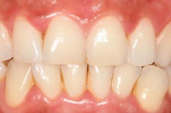 Gingivitis inducida por placa