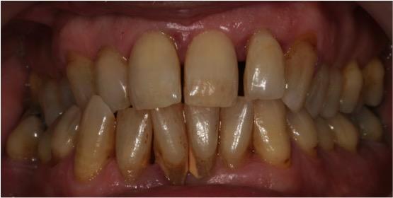 periodontitis crónica avanzada y diabetes